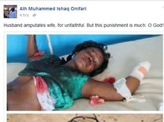 'Graphic Photos' Husband cuts off his wife's hand for being unfaithful A facebook user named Alh Muhammed Ishaq Onifari shared this gruesome photos online. He [...]