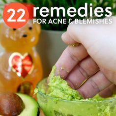 22 remedies for acne & blemishes.  LOVE THIS PIN. OMG. Life saver.