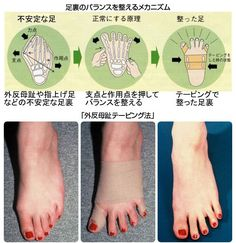 Diy Water Fountain, Diy Garden Fountains, Bunion Exercises, Human Body Structure, Get Rid Of Bunions, Diy Water Feature, Medical Anatomy, Workout Programs, Face And Body