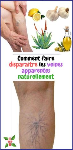 Comment faire disparaitre les veines apparentes naturellement The veins are sometimes visible under Varicose Veins Treatment, The Cure, How To Remove, Wellness, Healthy, Circulation, Voici, Solution, Couture