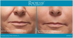 Radiesse helps fill deep wrinkles and can last almost a year.  At avecinia, Radiesse starts at just $500.  Learn more by visiting: http://www.avecinia.com/integrative-services/aesthetics-skin-care-fresno-clovis/skin-care-products/radiesse/
