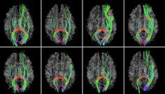 GPS for the Brain: New Brain Map Developed