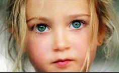 rare eye color