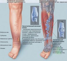 Nobody is exempted to venous insufficiency. However, the symptoms exceeded more than two weeks it can already classified as chronic venous insufficiency. The terms postphlebitic syndrome and postth… Nursing Tips, Nursing Notes, Nclex, Med Surg Nursing, Nursing Crib, Vascular Ultrasound, Varicose Veins Treatment, Varicose Veins Causes, Medical Surgical Nursing