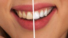 Co budeme potřebovat: K odstranění zubního kamene a předcházení onemocnění dásní budete potřebovat pouze tyto dvě věci: 250 ml vody 40 gramů skořápek z vlašských ořechů instrukce 1) Nejprve povařte ořechové skořápky ve vroucí vodě asi 20 minut. Vařte na mírném ohni s poklicí na hrnci, aby během vaření nevyvřelo hodně vody. 2) Nechte vodu …