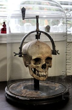 Skull with Trephine by jack_mord, via Flickr