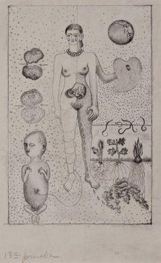 Como sequela do acidente, Frida sofreu três abortos durante a vida. O sofrimento por não poder formar uma família completa ao lado de Diego Rivera foi retratado em vários quadros. Foi a primeira mulher a quebrar a barreira entre o público e o privado e a retratar algo tão íntimo em quadros