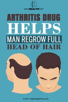 When drugs are developed to treat a particular condition, often other unforeseen uses result. But this arthritis drug has now proven to regrow hair.