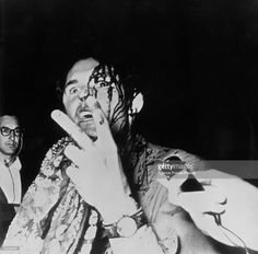 A photgrapher bleeding from a head wound given to him by police during the riots in Grant Park outside the 1968 Democratic National Convention gives the peace sign as he is interviewed, Chicago, Illinois, August 28, 1968. The demonstration, held across the street from Democratic Headquarters Hotel, erupted into violence after Chicago police tried to break up the anti-Vietnam War protest.