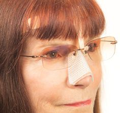Recovering From a Recent #Rhinoplasty? Do Your #Glasses Hurt Your Nose? Try #NoseComfort Eyeglass Support.