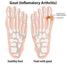 Gout (also known as gouty arthritis) is a condition caused by a buildup of the salts of uric acid (a normal byproduct of the diet) in the . Acetic Acid, Uric Acid, Gout Flare Up, Gout Prevention, How To Cure Gout, Gout Diet, Arthritis