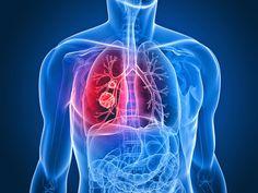 PURIFICACION DE AIRE AIRLIFE MUNDIAL te dice. Que es el cáncer pulmonar Es el cáncer que comienza en los pulmones. Los pulmones se localizan en el tórax. Cuando uno respira, el aire pasa a través de la nariz, baja por la tráquea y llega hasta los pulmones, donde fluye a través de conductos llamados bronquios. La mayoría de los cánceres pulmonares comienzan en las células que recubren estos conductos. . http://airlifeservice.com/