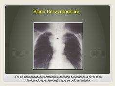 Signos radiologicos de Torax