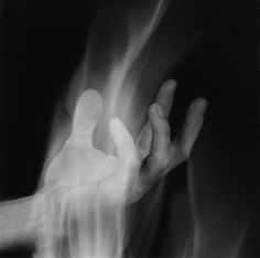 Hand in Fire by Robert Mapplethorpe