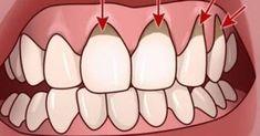 Η καλή στοματική υγιεινή είναι μείζονος σημασίας για την σύνολο της υγείας μας. Αλλά για μερικούς ανθρώπους, το βούρτσισμα των δοντιών και το οδοντικό νήμα
