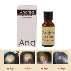 20 미리리터 100% 안드레아 원래 햇살 빠른 머리 성장 Pilatory 에센스 인간의 머리 오일 대머리 탈모 방지