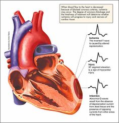 an analysis of symptoms and methods in preventing heart attack or myocardial infarction To determine the level of knowledge of signs and symptoms of heart attack and  biomed research international is  for st elevation myocardial infarction is .
