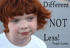 Sooooo cute I love people with red hair, probably because half my family is red haired. People With Red Hair, Love People, Temple Grandin, Beautiful Freckles, Long Stories, Ginger Hair, Special Needs, Redheads, Autism
