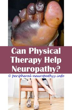 Benbow s diabetic peripheral neuropathy and quality of life.Chronic inflammatory demyelinating neuropathy and its variants.Neuropathy and eye pain - Peripheral Neuropathy. Symptoms Of Neuropathy, Peripheral Nerve, Peripheral Neuropathy, Natural Treatments, Natural Cures, Eye Pain, Muscle Atrophy, Nerves Function