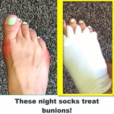 Bunion Relief Toe Socks Treat bunions at home without surgery! Diy Pedicure, Pedicure At Home, Bunion Remedies, Bunion Relief, Foot Pain Relief, Massage Tips, Operation, Toe Socks, Plantar Fasciitis