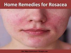 Home Remedies for Rosacea Home Remedies For Rosacea, Health Care, The Cure, Health