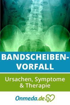 LWS-Syndrom: Schmerzen in der Lendenwirbelsäule loswerden..