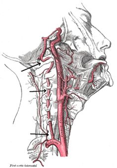 The immediate effect of atlanto-axial high velocity thrust techniques on blood flow in the vertebral artery: A randomized controlled trial.