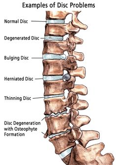 Some samples of the different kinds of disk problems you can have with your spine.