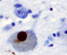 #Has incidence of Parkinson's disease increased over past 30 years? - Medical Xpress: Medical Xpress Has incidence of Parkinson's disease…