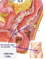 acute diverticulitis에 대한 이미지 검색결과