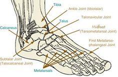 Arthritis of the Foot and Ankle Osteoarthritis and Rheumatoid Arthritis