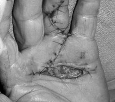 McCash Open Palm Technique for Dupuytren's Contracture: wound closes by secondary intention and there is less risk of hematoma.