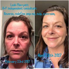 """Leah had this to say about her results! - """"I was always a skin care junkie, so many products and never any results . Then I found these amazing products, although it's only been a few months I am seeing so many changes in the look and feel of my skin  I love love these products . In my after pic I am using our mineral peptides, no make up in my first 'mugshot'."""" Http://mpineda.myrandf.com"""
