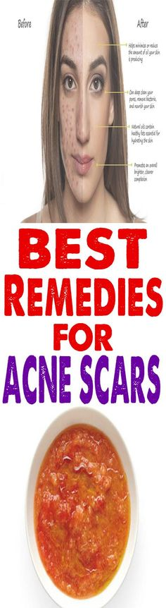 Deep scar removal home remedies - How to get rid of deep acne scars overnight naturally , Follow PowerRecipes For More. #howtogetridofacnescars,