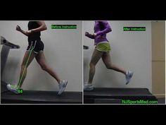 Running Analysis of Heel Strike versus Forefoot Strike (Same runner, 2 weeks apart) heel strike bad bad bad! Running Workouts, Running Tips, Trail Running, Sports Physical Therapy, Causes Of Back Pain, Trx Training, Running Form, Butt Kicks, Heath And Fitness