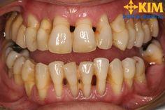 Nguyên nhân răng thưa dần, cách khắc phục nhanh, hiệu quả nhất