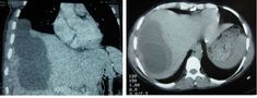 Hydatid Cysts of the Liver - Diagnosis, Complications and Treatment Mri Brain