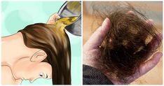 Stop Hair Loss and Make Hair Grow Again – Stronger, Faster and Healthier. A Natural Method! Make Hair Grow, How To Grow Your Hair Faster, How To Make Hair, Hair Loss Causes, Prevent Hair Loss, Hair Remedies For Growth, Hair Loss Remedies, Hair Growth, Vicks Vaporub
