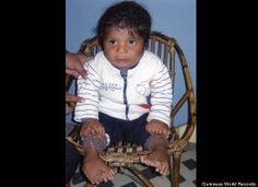 Akshat Saxena had 34 fingers and toes at birth in India in 2010. That set a Guinness World Record for most digits, although doctors later amputated many of them in 2011.