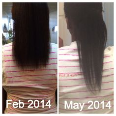 Hairfinity Before And After Vitamins For Hair Growth Infinity