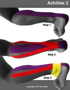 kt tape achilles tendonitis - Google Search