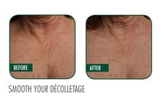 Ultherapy before and after on the decolletage. #Ultherapy #BalleBliss