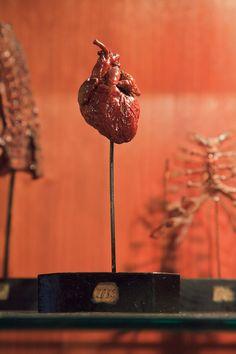 """""""petrified"""" human heart, Museo di Anatomia Umana (Museum of Human Anatomy) of Pisa, Italy. via Morbid Anatomy."""