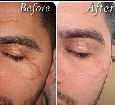 Jeunesse ürünleri kullanarak yüzünüzdeki izleri en aza indirebilirsiniz