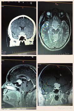 Meningioma Tumour