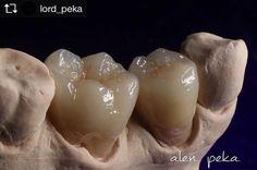 #dental #dentist #dentalassistant #denta #dentallab #dentallove #dentallabor #zub #zubeydemutfakta #zubizu #zubizu #stom #stomach #stomatalogy #stomatattoo #stamatoloq #diw #dis #diş #dişhekimliği #dişpartisi #dişhekimi #dişci #зубной #зубы #техник #texnik