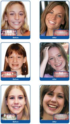 Damon System Before and After-Theurer Orthodontics, St George, UT Braces Dentist, Damon Braces, Brace Face, Teeth Straightening, Dental Assistant, Orthodontics, Smile, Cosmetics, Traditional