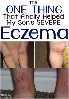 What finally worked for eczema after trying multiple creams, over the counter prescriptions, and even essential oils!