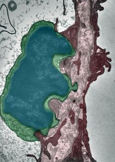 EM: lung tumor cell extravasating through an alveolar endothelium blood capillary – the tumor cell is depicted in blue green, the endothelial cell in purple red.