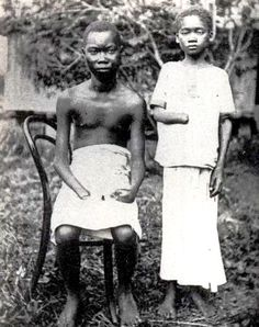 Shows Congolese under King Leopold II of Belgium with their hands chopped off for not meeting rubber quotas. c. late 1800s